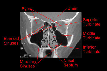Nasal anatomy and physiology turbinate cross sectional ct ccuart Image collections